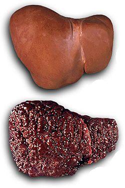 Сколько литров крови в печени человека