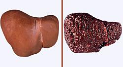 Сканирование печени при циррозе