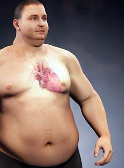 Ожирение сердца
