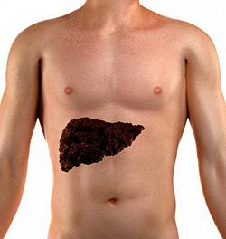 Лечение цирроза печени в ведущих клиниках